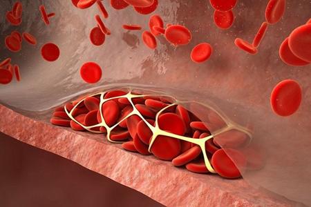 血管堵塞是什么引起的