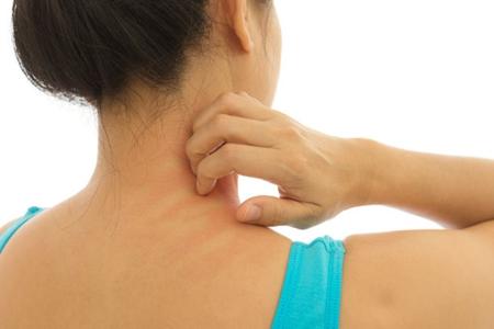冬季皮肤瘙痒怎么办?