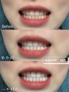 我的美白秘笈 牙齿变白小妙招 自用牙粉分享