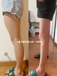 高效瘦腿改善大腿前侧突起|小腿外翻!