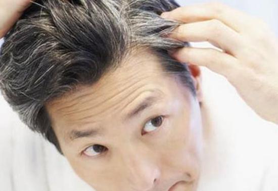 三个部位长白发最危险 预示着你的身体出现了问题