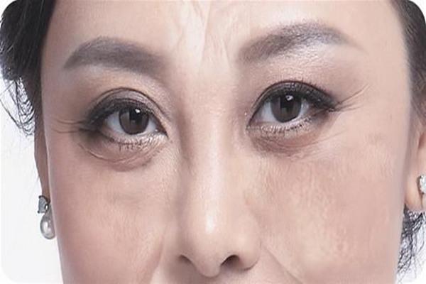 去眼袋最有效的方法 不用手术去除眼袋