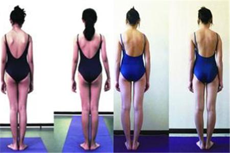 脊柱侧弯自我矫正法 让你的身形更好看