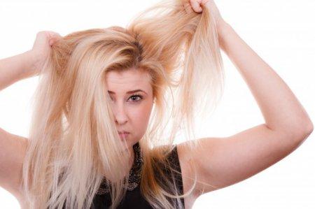 头皮枯燥头屑多怎么办 找对原因才能对症下药