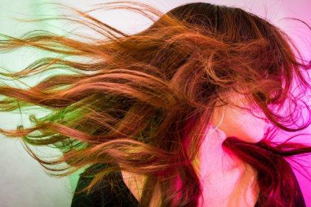 头皮枯燥头屑多头痒掉头发怎么办 这些原因你必须知道