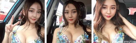 隆胸后的女生
