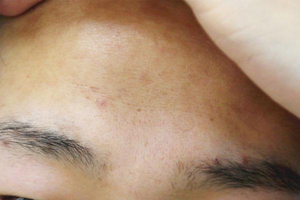 拥有洁净无暇的肌肤是每个爱美的人的追求去除脸上螨虫的小妙招?