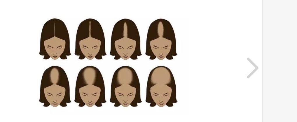 掉头发是怎么回事