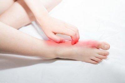痛风是什么引起的?三个引起痛风的主要原因
