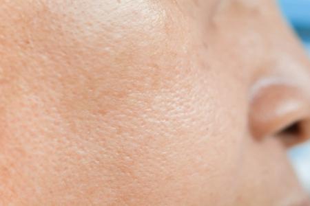 怎么收缩毛孔最有效最方便的?五个女人收缩毛孔的方法