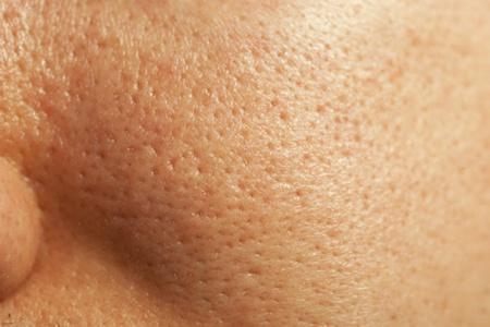 怎么收缩毛孔最有效地最便利的?