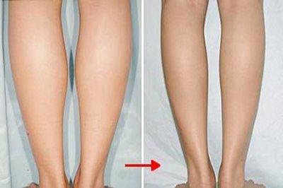 小腿怎么瘦下来?有效的瘦腿方法让粗腿变细腿