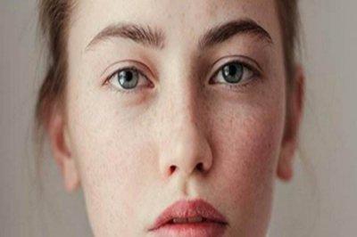 常见的皮肤问题有哪些?如何正确的改善肌肤问题