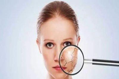 皮肤屏障受损后要怎么护理?做好五点正确护理好肌肤