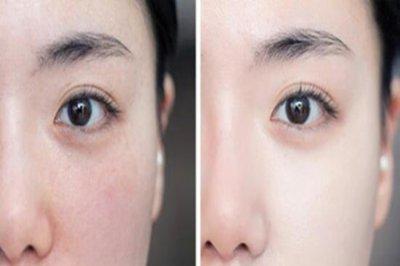 脸上卡粉是什么原因?如何避免出现卡粉情况