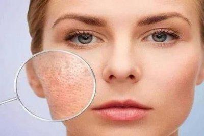 毛孔分为哪些类型?如何护理不同毛孔类型
