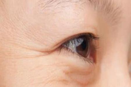皮肤衰老有什么表现?❓❓