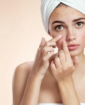 美容专家破解长痘密码 脸上长痘痘是什么原因