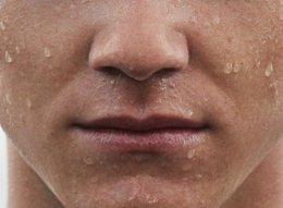法令纹怎么去除 鼻子两侧八字纹很深怎么消除