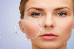 毛孔粗大的改善方法 简单几步让你拥有婴儿肌