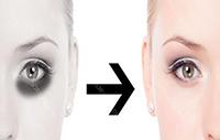 怎样有效去除黑眼圈快速有效 告诉你几个不为人知的奥秘