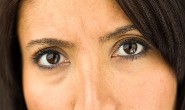 泪沟深的人是哭多了导致的吗 告诉你多见的产生眼窝的原因