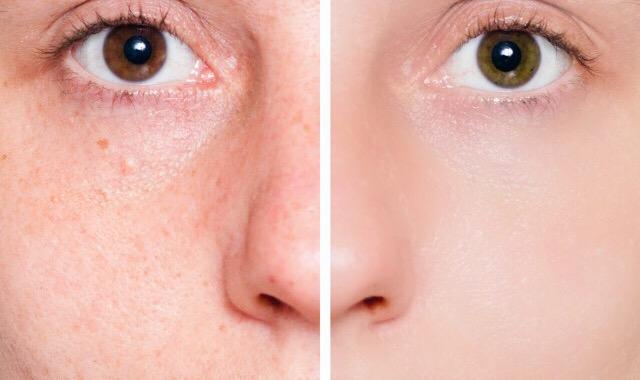 牙膏涂在痘痘处一晚上有消炎作用吗 教大家快速处理肌肤问题