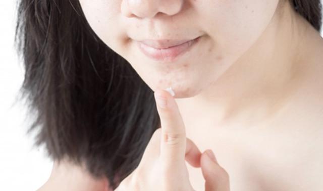 激素痘痘是怎样子的 与普通痤疮有何区分