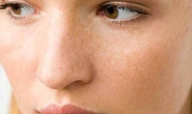 香菜祛斑多长时间见效 去除脸部斑点只需这样做