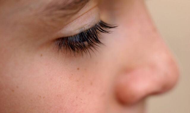 皮肤深层痘痘长不出来怎么办 三招解决皮肤问题