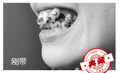 牙齿矫正(虎牙)一年侧面对比图