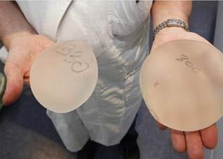 韩式隆胸材料的优点有哪些