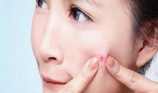 脸上长痘痘怎么调理 具体6个步骤方法和注意事项