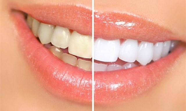 洗牙后多久能够吃东西 这些注意事项要清楚