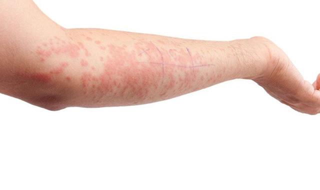 皮肤过敏治疗方法盘点 找对根源才能对症下药