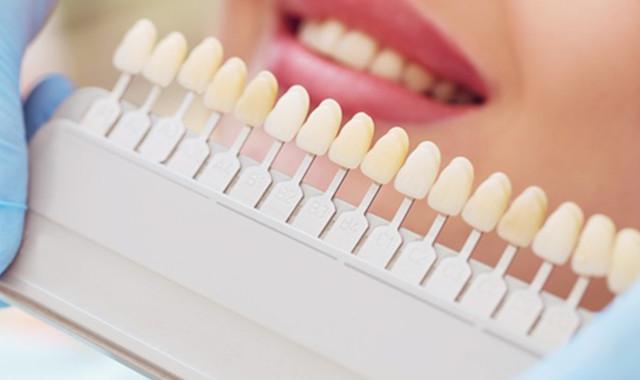 牙根尖周炎是怎么形成的 与细菌感染息息相关