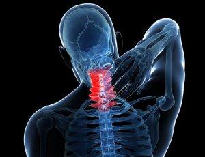 颈椎病如何自我治疗 5个有效方法缓解疼痛
