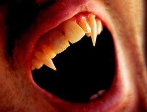 少年患病似吸血鬼 人长獠牙的原因