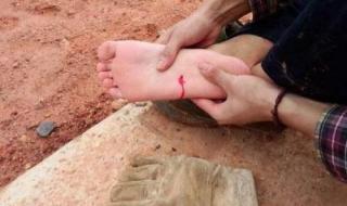 脚被钉子扎了怎么办 脚被钉子扎了怎么处理