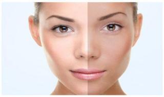 脸部肤色不均怎么办 有哪些原因和方法