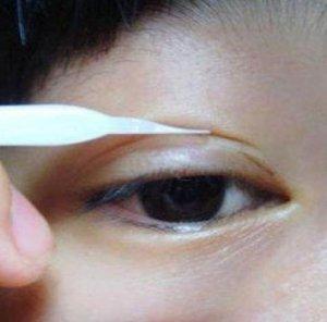 双眼皮贴怎么贴 简单步骤教程闭眼不尴尬