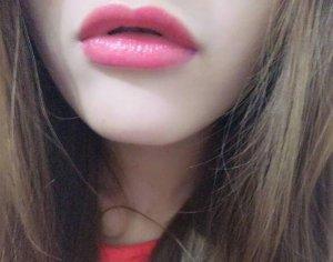 嘴唇枯燥起皮是什么原因 嘴唇周围发红枯燥起皮解决方法