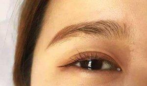 如何快速去除眼部细纹 眼部细纹消除妙招偏方