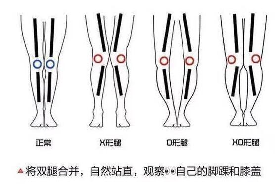 腿对于女生来说真的太重要了 女生怎么瘦腿最有效的方法