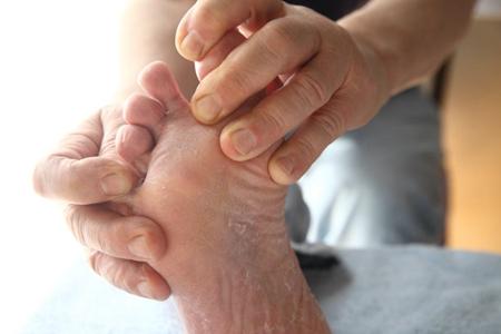 脚气怎么治能除根 三个方法能有效缓解脚气烦恼