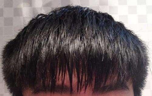 男生都有两边头发炸毛 男生头发两边翘(发质硬两边炸)怎么办?
