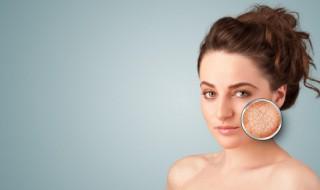 两边毛孔粗大怎么改善 脸颊两边毛孔粗大怎么办