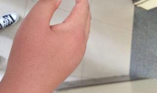 手上被蚊子咬了怎么处理 有什么解决的方法